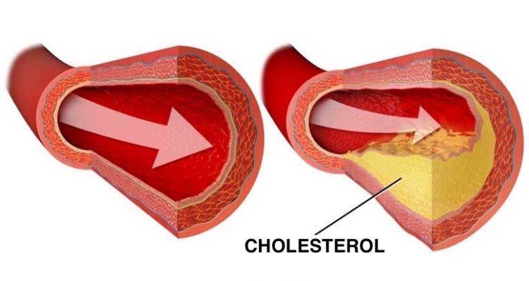potraviny_na_cholesterol_cas_na_zdrave_jidlo_cz